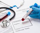 У Србији инфицирано још 235 особа вирусом корона
