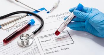 Jош 17 позитивно на коронавирус – пет из Врања