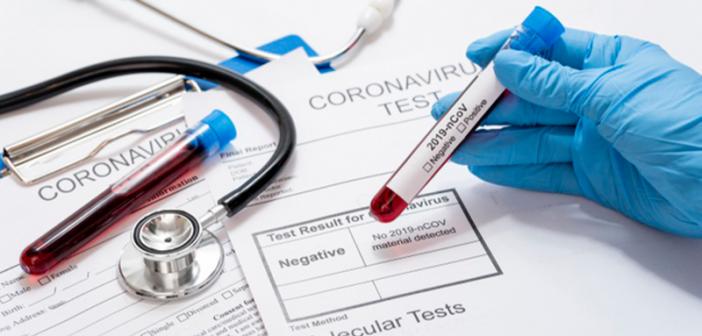Још 266 особа заражено вирусом корона у Србији