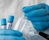 У Пчињском округу још 6 новозаражених вирусом ковид 19